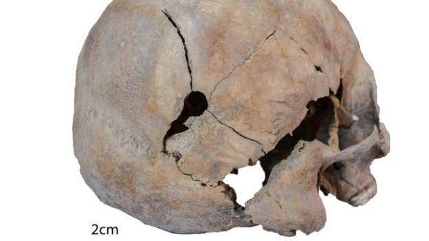 Un cráneo con un tiro y munición confirman a Tenoya como pozo de la represión franquista en Gran Canaria